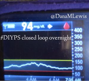 #DIYPS closed loop overnight